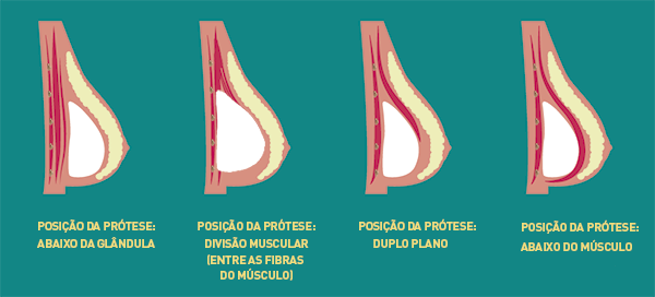 posicao ideal dos implantes de silicone